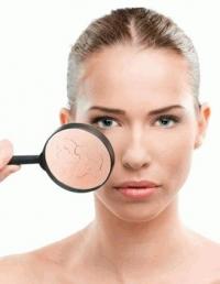 сухая кожа,обезвоженная кожа,уход за кожей лица,увлажнение кожи