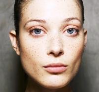 веснушки,тренд,2014,осень,макияж,неделя моды в Лондоне