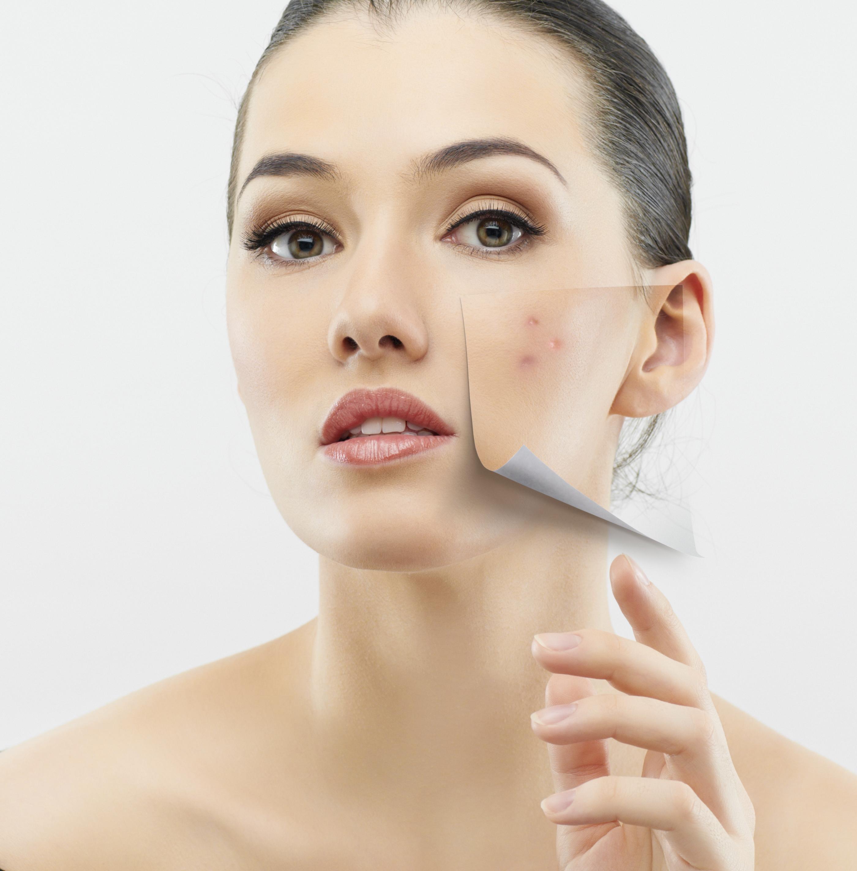 азелаиновая кислота против акне, азелаиновая кислота свойства, азелаиновая кислота для кожи, постакне шрамы как бороться, шрамы постакне лечение