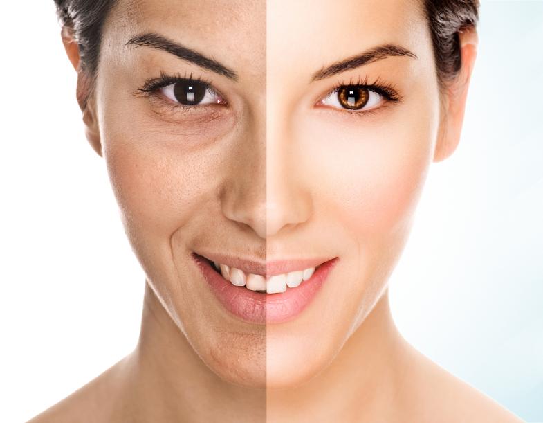 антивозрастной уход,область декольте,уход за кожей,стоит ли делать ботокс,остановить старение
