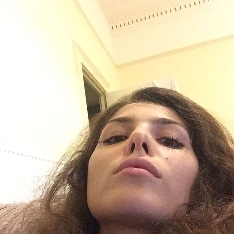 Облупившийся лак, эпиляция на верхней губе и другие негламурные фото модели в инстаграм сделали ей славу