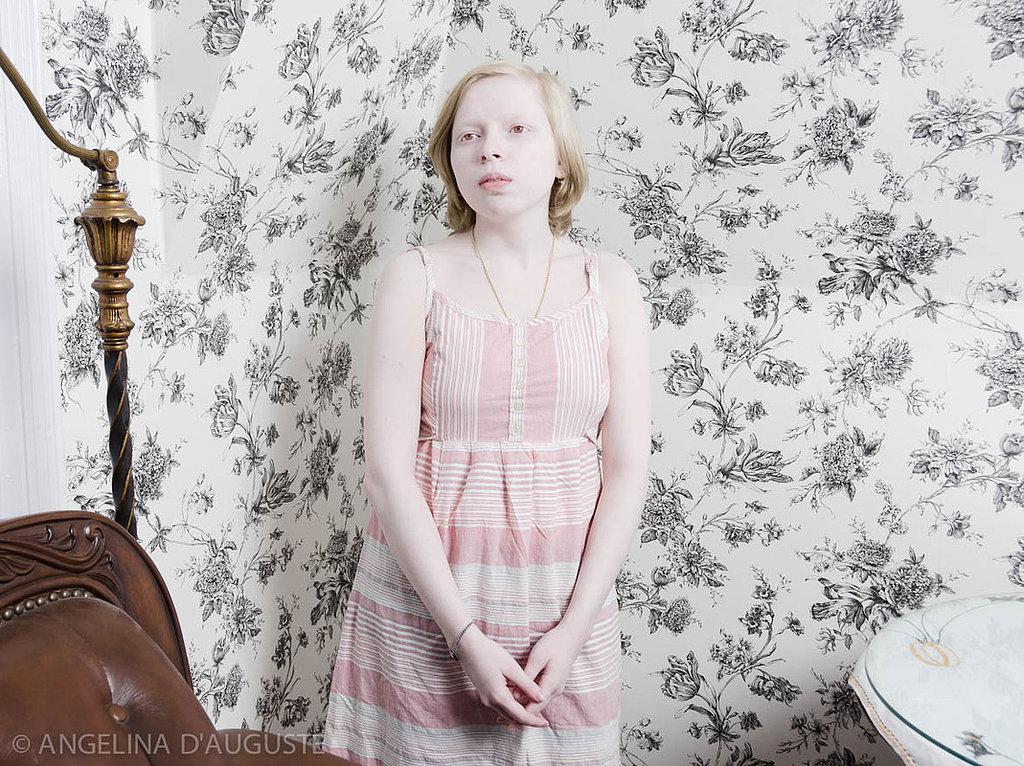 Белоснежная красота: чарующие фотопортреты людей-альбиносов