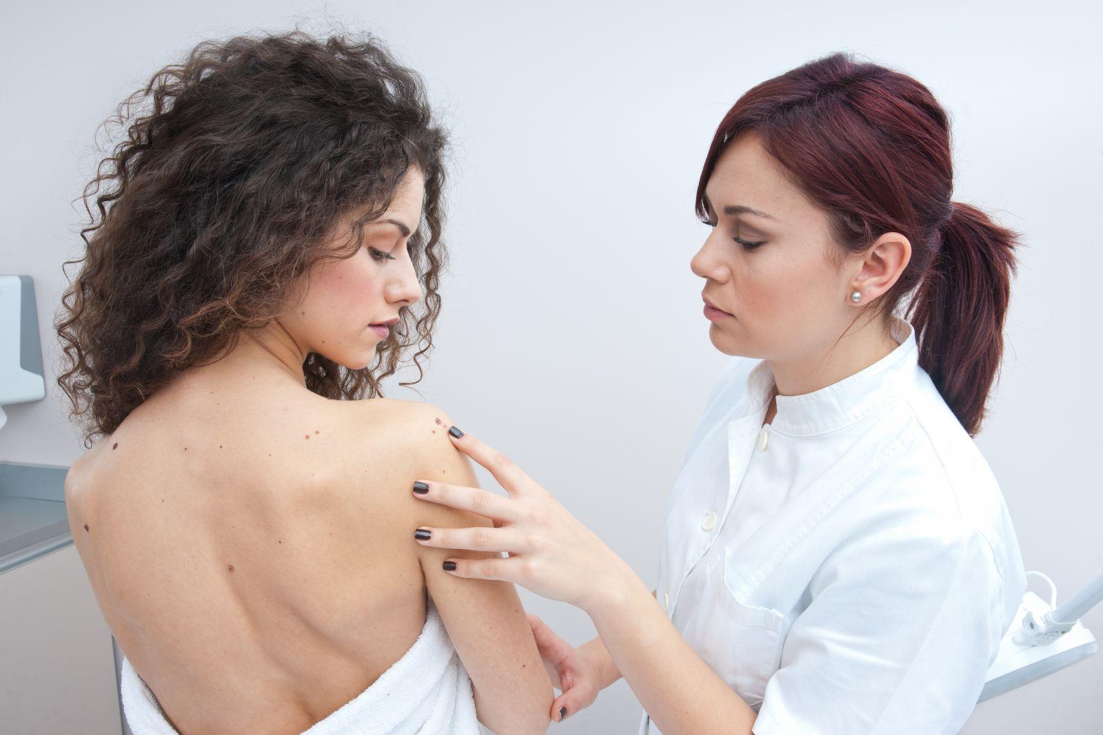 22 апреля — День меланомы: как уберечь свою кожу и где бесплатно проверить родинки