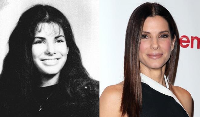 Звезды до и после пластических операций