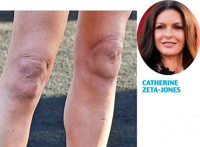 некрасивые колени фото