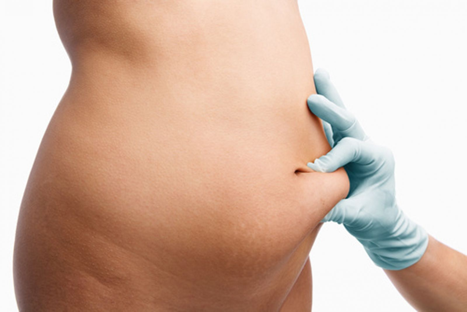 Абдоминопластику или подтяжку живота специалисты считают одной из наиболее травматичных операций в пластической хирургии – слишком велика поверхность, на которой приходится работать врачам.