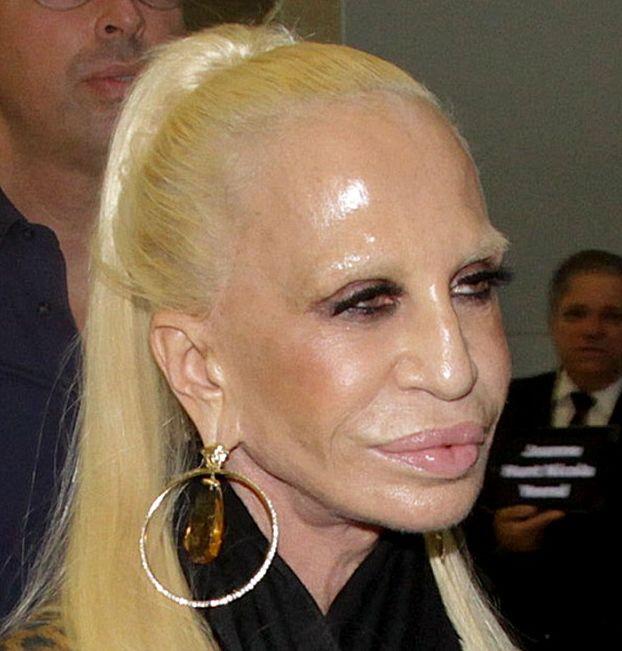 Донателла Версаче изуродовала свое лицо!