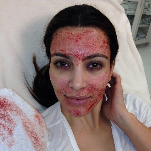 Красота требует жертв, или пугающие beauty-процедуры знаменитостей