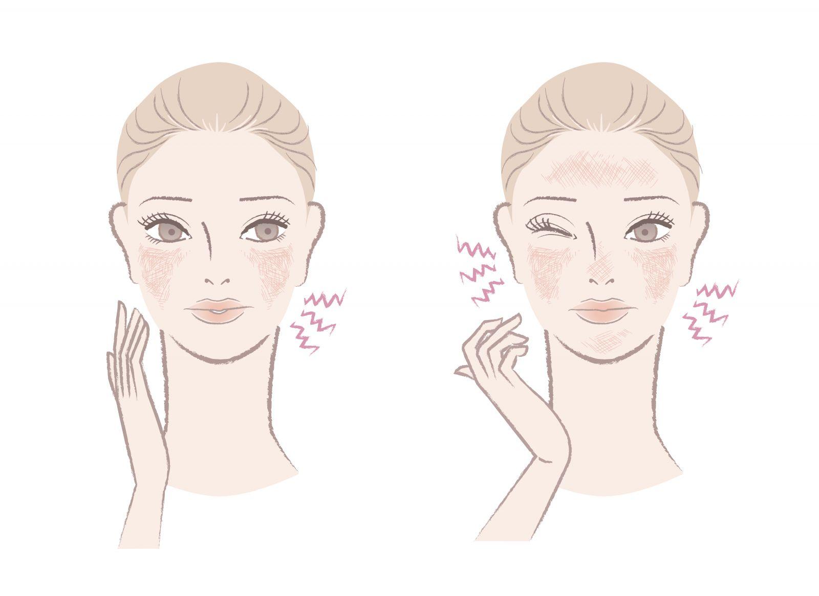 Почему твоя кожа чувствительна и что с этим делать?