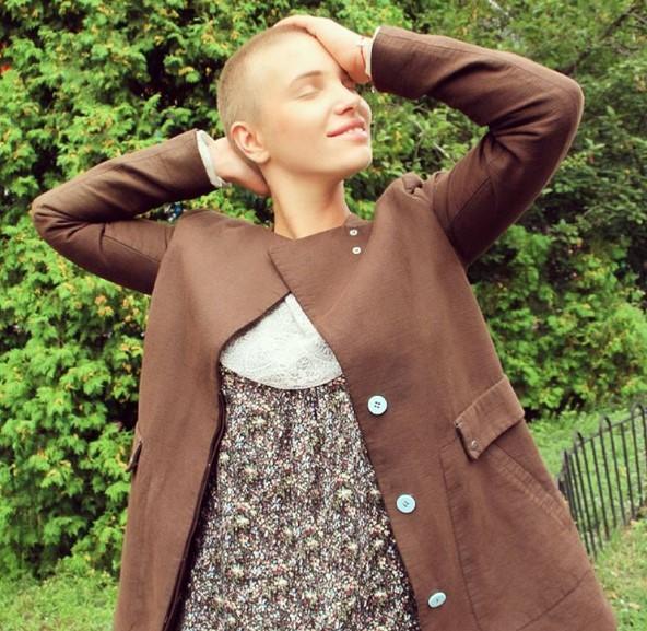 Украинская модель, победившая рак, стала звездой сети (ФОТО)