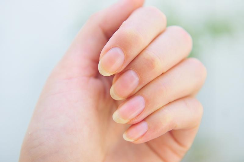эффективная процедура запечатывания ногтей