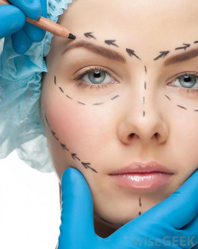 блефаропластика – операция по устранению неэстетических особенностей верхних и нижних век