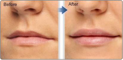 Гиалуроновая кислота для сексуальных губ