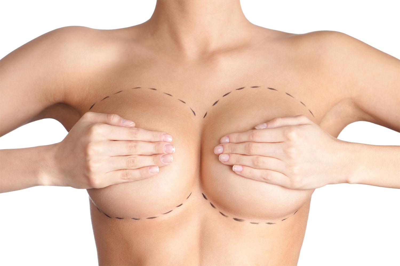Пластика груди: Маммопластика