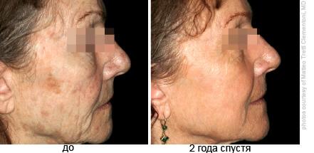 Фракционное омоложение лица: как проходит процедура